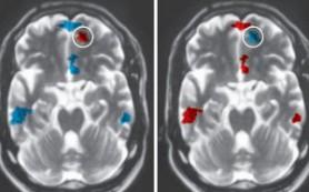 Сканирование мозга определяет продолжительность отношений