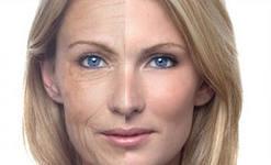 Как защитить кожу от старения: женщинам на заметку