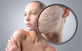 Рекомендации при сухой коже