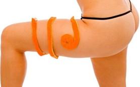 Атака на апельсиновую корку на коже