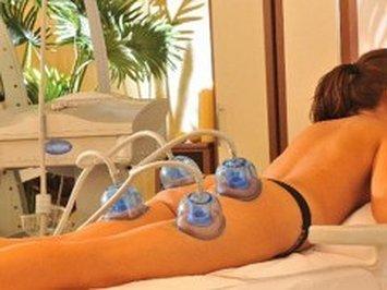 Баночный вакуум массаж ног и ягодиц