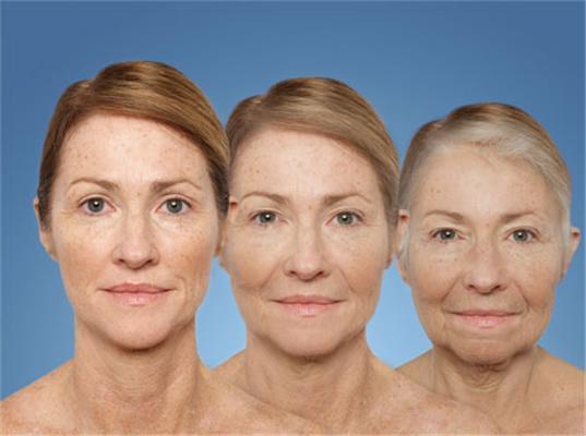 Факторы старения кожи