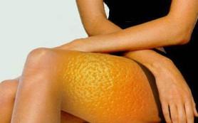 Причины возникновения целлюлита и способы его профилактики