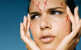 Причины жирности кожи: возьмите на заметку