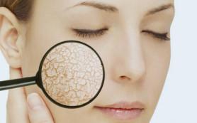 Основные способы ухода за сухой кожей