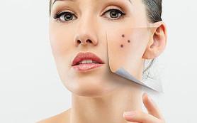 Способы восстановления проблемной кожи
