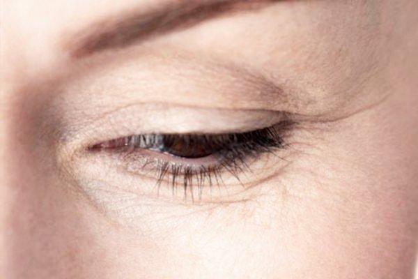 Устраняем морщины под глазами