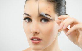 Учимся правильно ухаживать за проблемной кожей