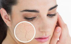 Основной уход за сухой кожей
