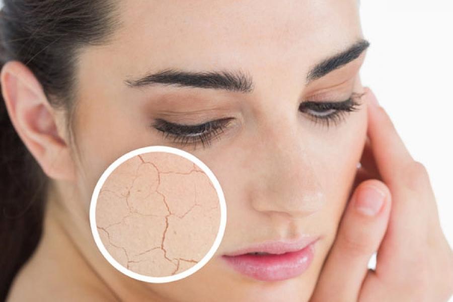 Уход за сухой кожей в осенний период