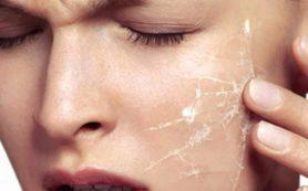 Полезные советы по уходу за сухой кожей лица