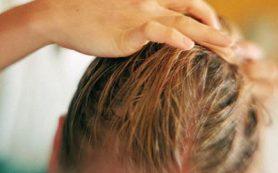Уход за жирными волосами: советы