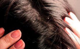 Как избавиться от перхоти — советы экспертов