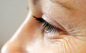 Появление морщин может быть связано с ожирением печени