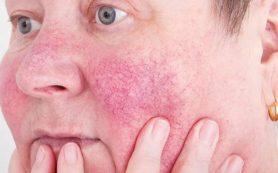Все на лице: пять сигналов о нехватке витамина D