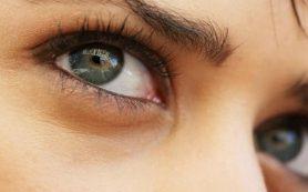 6 нарушений, о которых могут сигналить темные круги под глазами