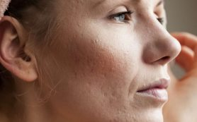 4 причины взрослых акне