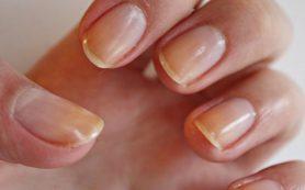 7 причин, по которым желтеют ногти