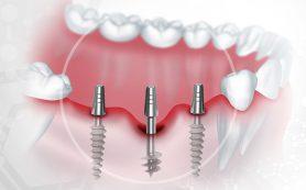 Как восстановить зубы? Имплантация