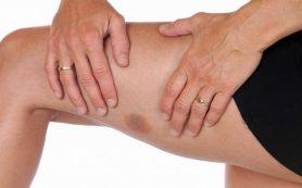 5 причин, почему у вас возникают синяки даже при незначительном ударе