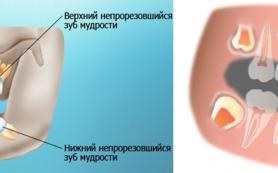 Зубы мудрости: вырвать нельзя оставить
