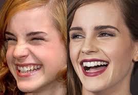«Что такое десневая улыбка, и можно ли ее исправить?»
