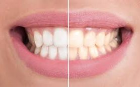 Почему желтеют зубы и как с этим бороться