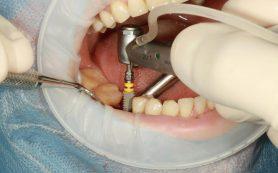 Имплантация зубов как путь к здоровью