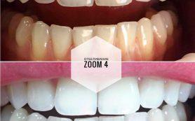 Отбеливание зубов в «Имплантмен»