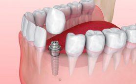 Как выполняется протезирование на имплантах?